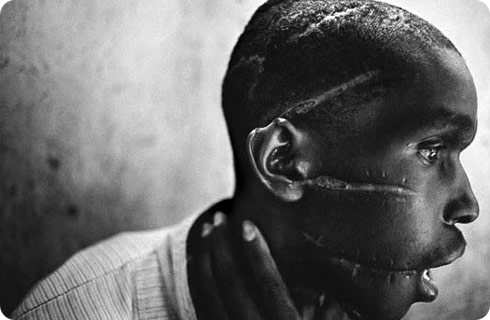 scarred head of a Rwandan man